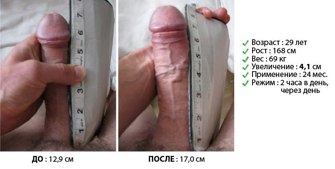 Как увеличить пенис в домашние условия 139