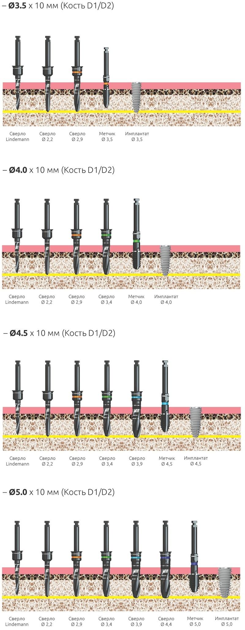 Хирургический протокол установки имплантов NeoBiotech IS-II Active