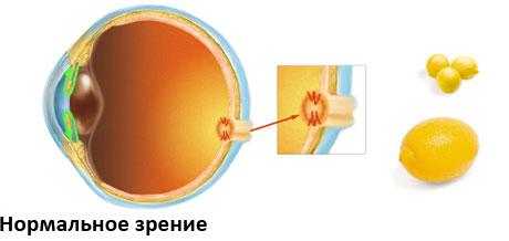 Глаукома - сравнение нормального и изменённого зрения