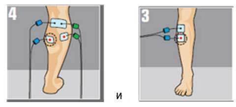 Электростимуляция Compex Mi Sport после перелома большеберцовой кости