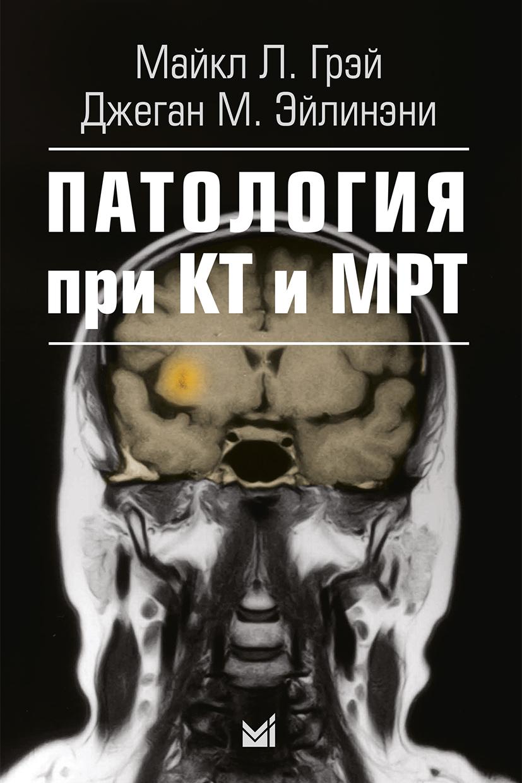 остеопатия при лечении эпилепсии