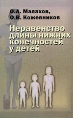 Неравенство длины нижних конечностей у детей