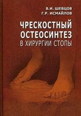 Чрескостный остеосинтез в хирургии стопы