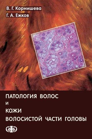Патология волос и кожи волосистой части головы / Корнишева В. Г., Ежков Г. А.